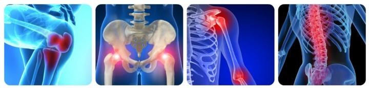 durere severă în articulația gleznei semne de artrită și modul de tratament