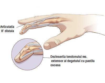 deteriorarea ligamentului de ghips tratament de deteriorare a articulațiilor deschise
