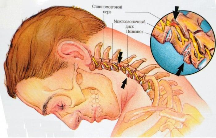 ce medicamente tratează simptomele osteochondrozei naftan în tratamentul articulațiilor