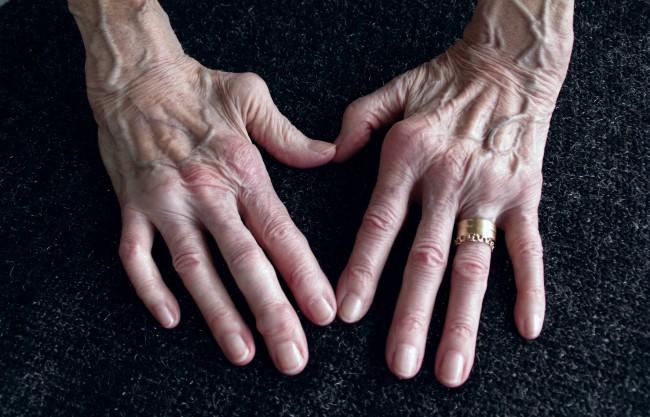 artroza reumatoidă a simptomelor genunchiului