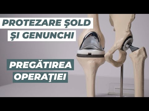 complicații ale durerilor de artroplastie articulară