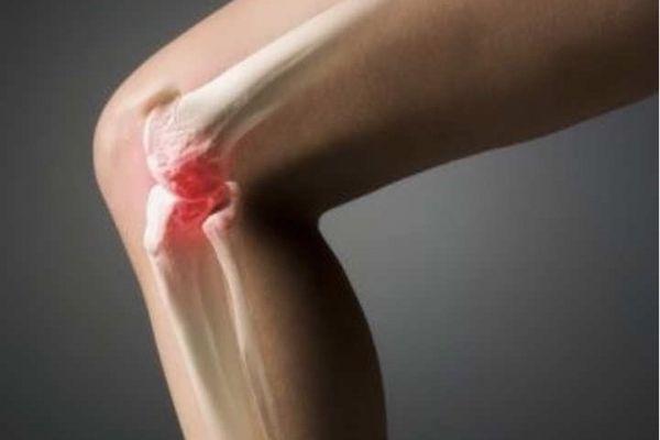 cum să scutiți edemul articular cu artrita