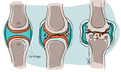 tratamentul artrozei tumorale la genunchi boli autoimune cu leziuni articulare predominante