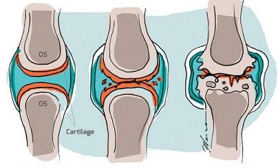 durere de flexie la nivelul articulațiilor genunchiului medicamente bune pentru inflamația articulară