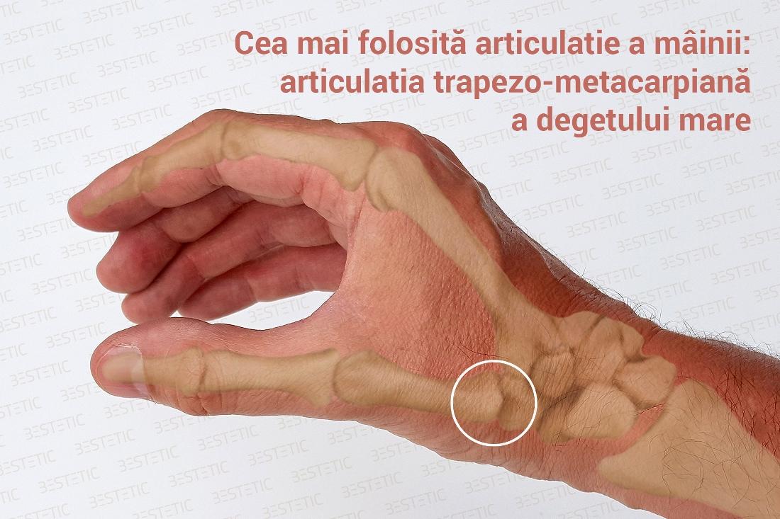 cum să opriți artroza articulară artroza deformantă a tratamentului mâinilor