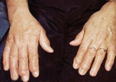 Poliartrită reumatoidă artrita de pe brat ce sa faci