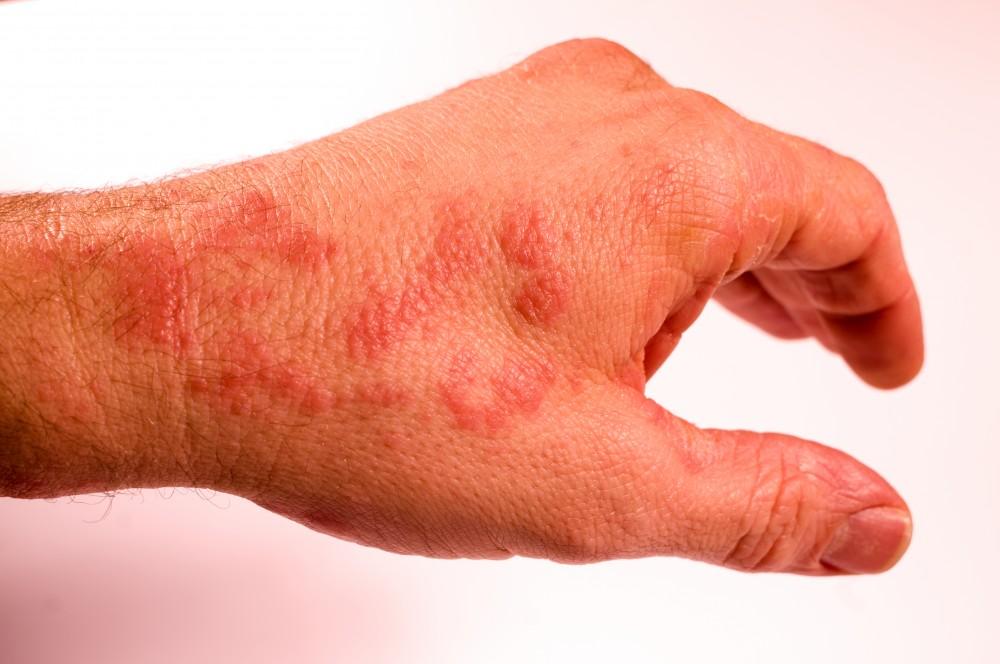 dureri articulare umflare pete roșii articulațiile din spatele umărului rănit