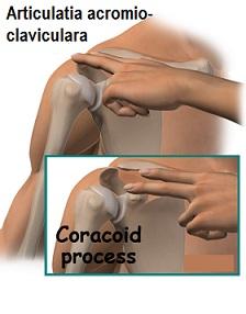 durere severă la genunchi cu o crenguță