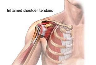 umflarea durerii articulației genunchiului