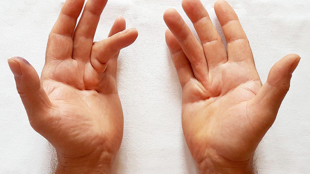 cum să tratezi boala articulară pe mâini