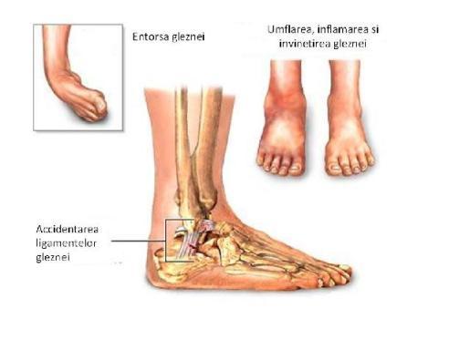 medicamente steroizi pentru artroza genunchiului cum și cine să trateze artroza