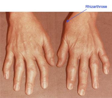 durere articulară 3 a degetului umflarea lungă a genunchiului