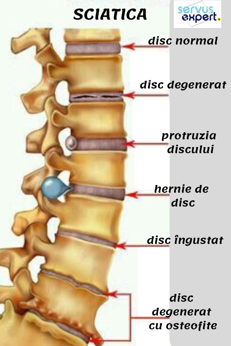 durere la nivelul feselor boli articulare în corpuri