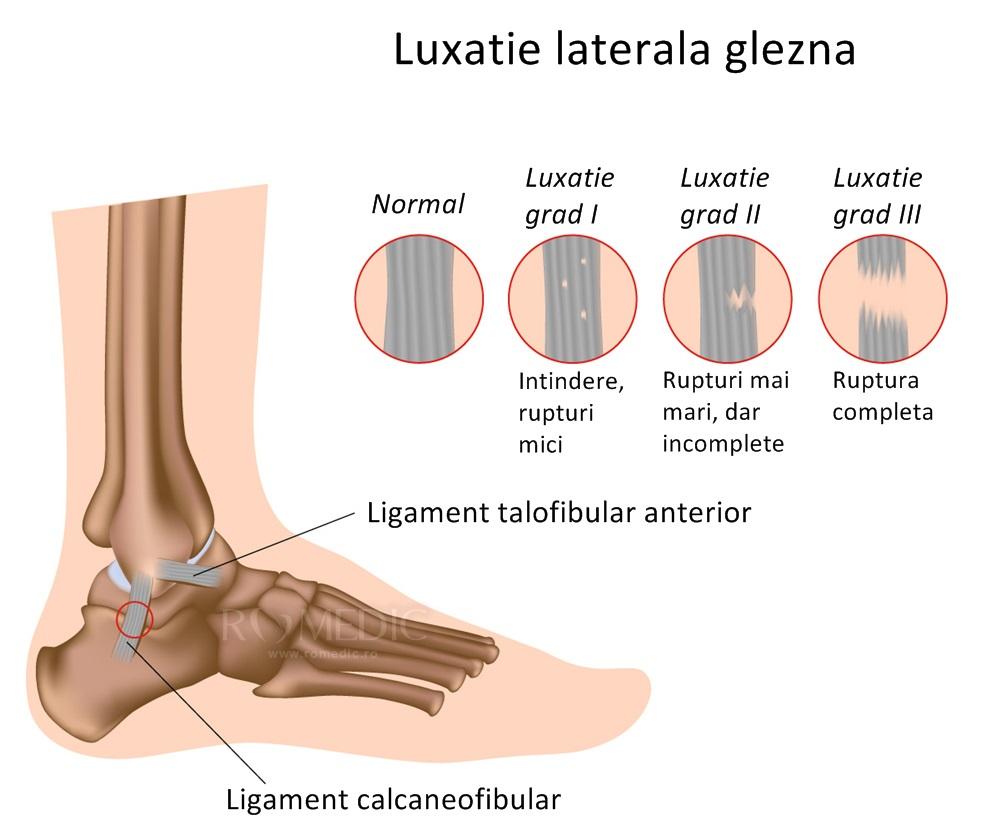 Un ortoped tratează articulațiile