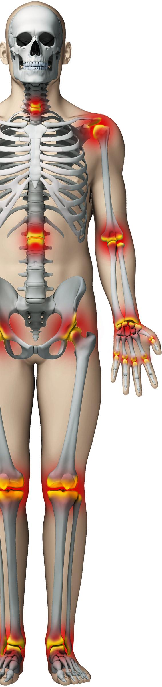 dureri articulare timp de șase luni tratamentul cu ode articulare