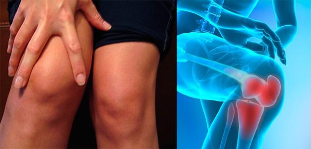 durere în brusturele articulației genunchiului