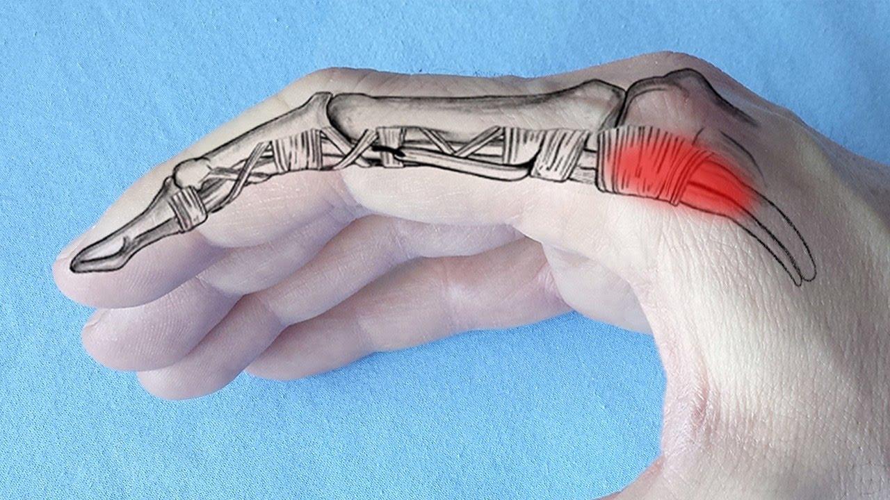dureri la nivelul gleznelor și articulațiilor umărului osteoartrita soldului cum sa tratezi