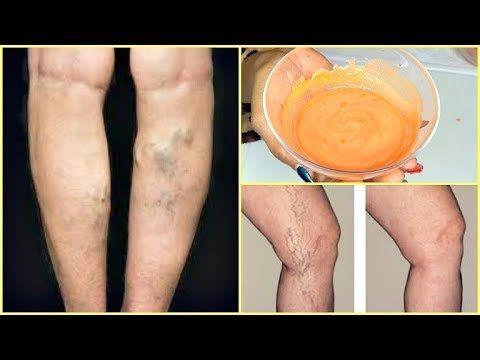 durerile de mâncărime ale corpului dureri articulare reumatice