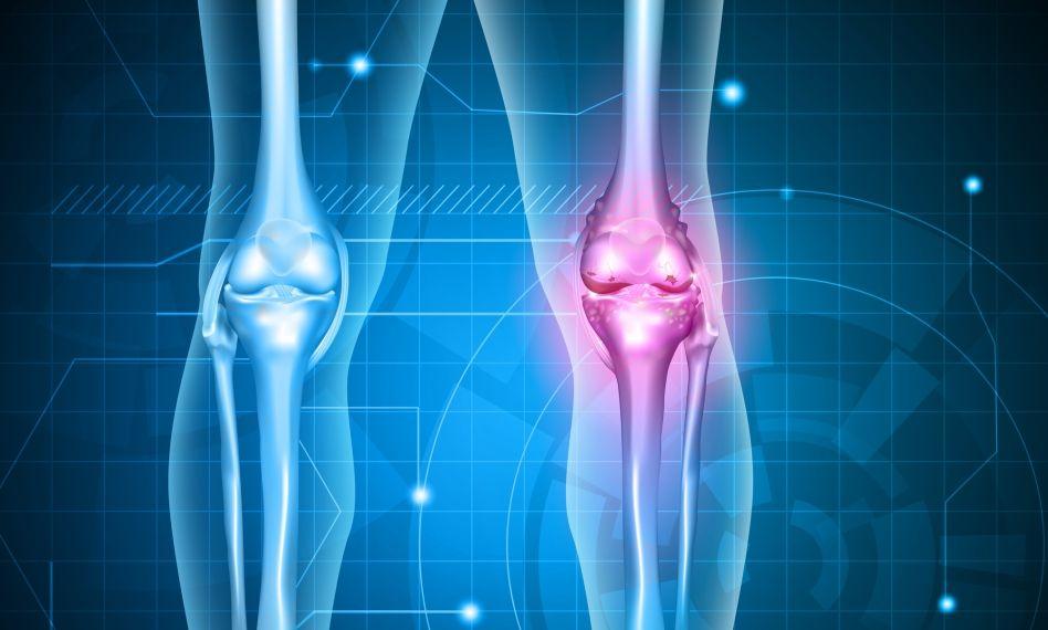 durere la nivelul articulației genunchiului pentru artroză
