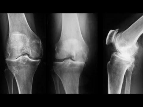 cum să tratezi leziunile la genunchi