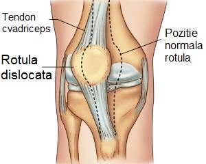 lovitura de genunchi dureri de genunchi chist brutar articulație genunchi