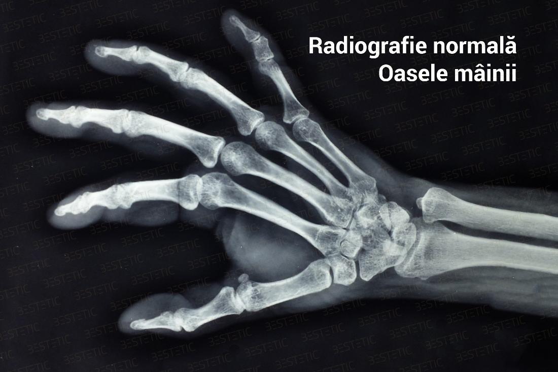 cum să opriți artroza articulară artrita articulațiilor tratamentului picioarelor