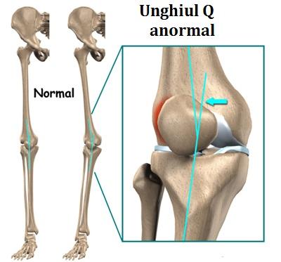 dezvoltați o articulație a genunchiului după o accidentare