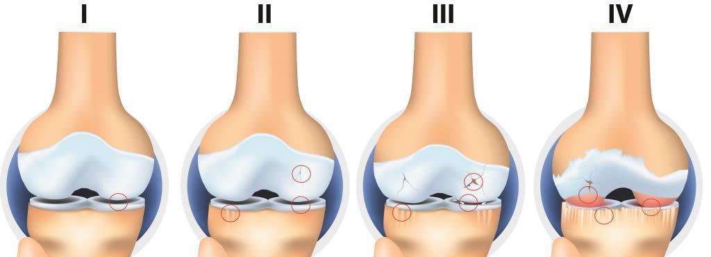 gonartroza simptomelor și tratamentului genunchiului ce ajută la revizuirile durerii articulare