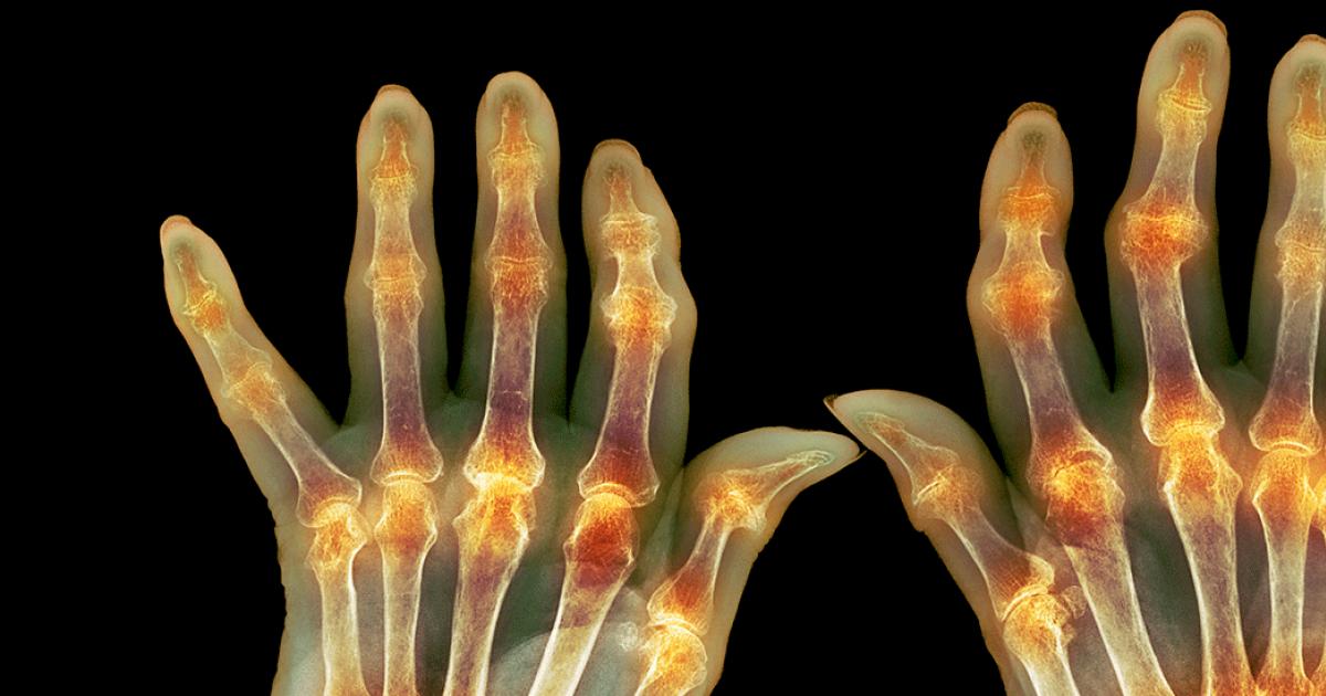 tratarea bolilor articulare durere în articulațiile picioarelor ce înseamnă