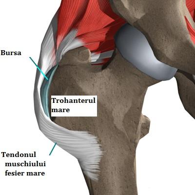 inflamația tendoanelor în articulația șoldului