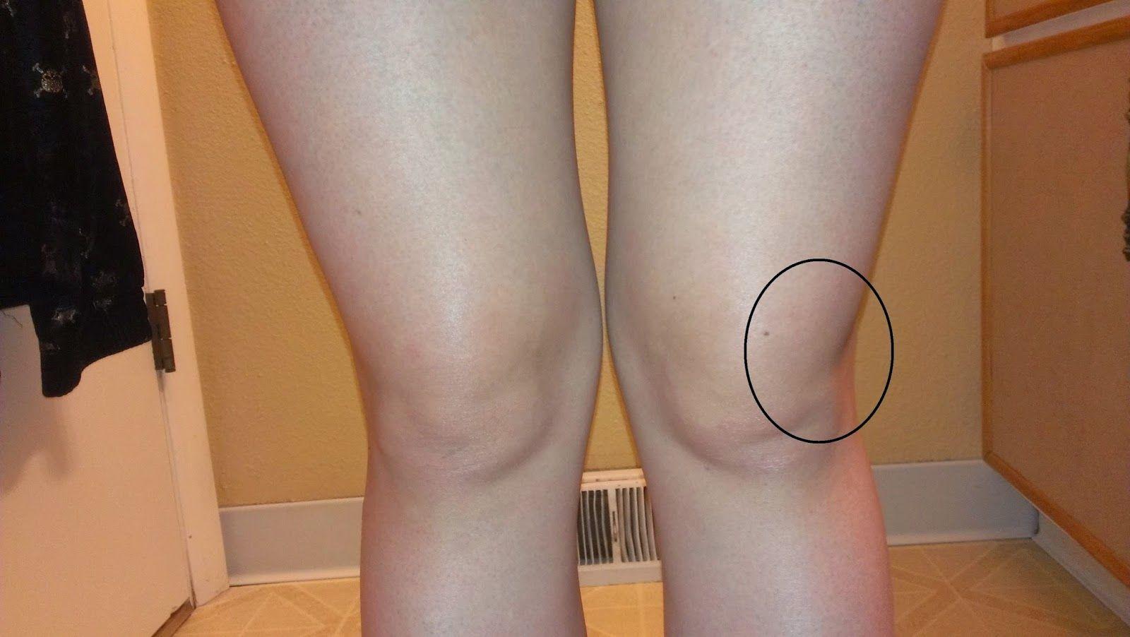 lichid pentru boala genunchiului medicamente de rating pentru articulații și ligamente