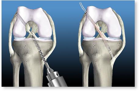 artrita genunchiului la bătrânețe dureri la nivelul articulațiilor genunchiului și la gambe