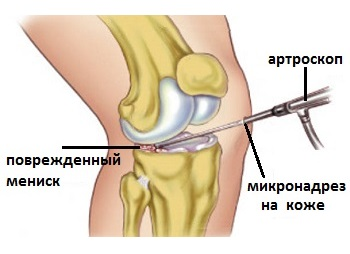 o consecință a blocării articulației genunchiului cu artroză