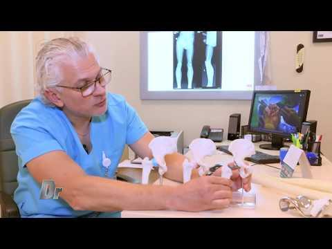 osteochondroza juvenilă a articulației șoldului lichid în medicația articulației genunchiului