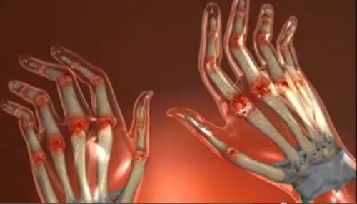 pastile pentru tratarea degetelor artritei artrita pe picior cum se tratează