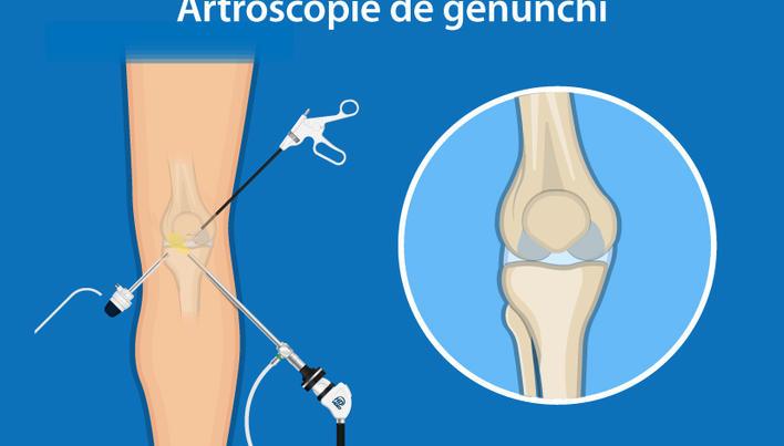 tratament cu exostoza genunchiului tratamentul durerii articulare după antrenament