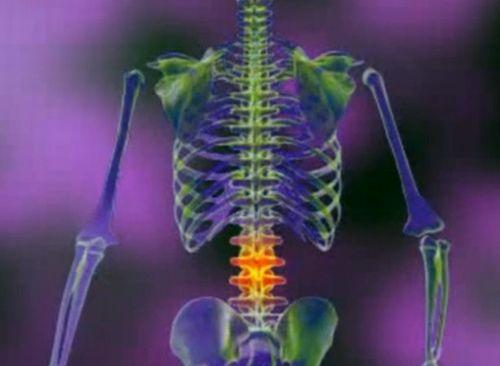 tratamentul cu lubrifiant pentru genunchi deteriorarea oaselor și articulațiilor membrului inferior