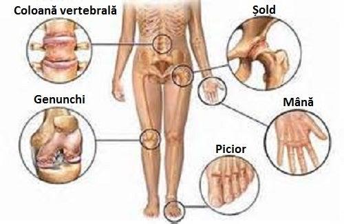 sodă și dureri articulare