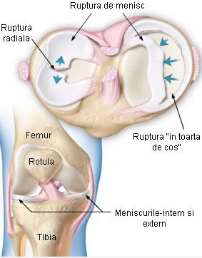 tratamentul artroscopic al afectării meniscului la genunchi boli ale ligamentelor articulației cotului