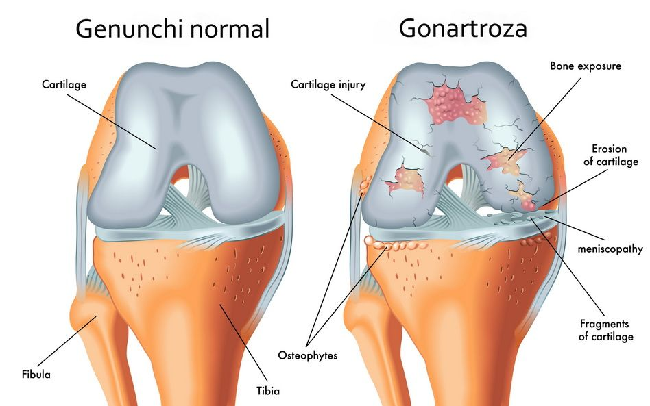 tratamentul artrozei articulației genunchiului drept