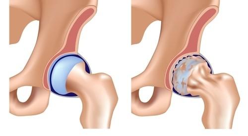 tratamentul durerii în articulația șoldului din dreapta articulații cum să trateze mâinile