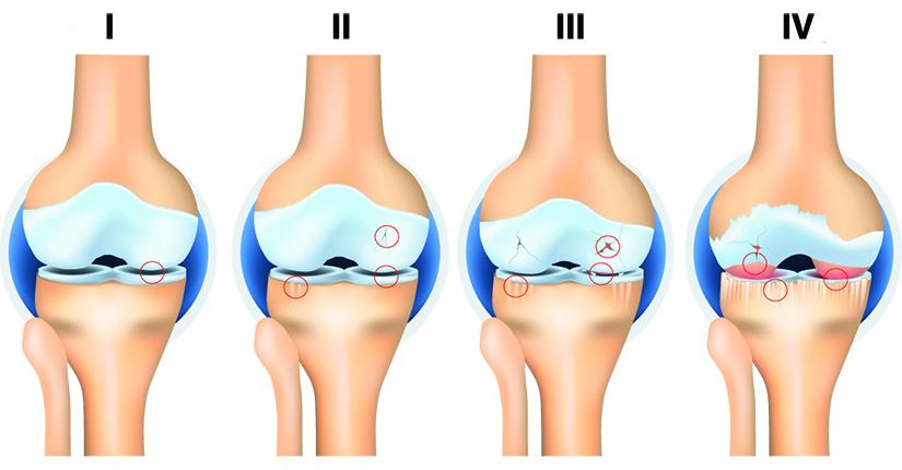 dureri ascuțite ascuțite în articulația genunchiului