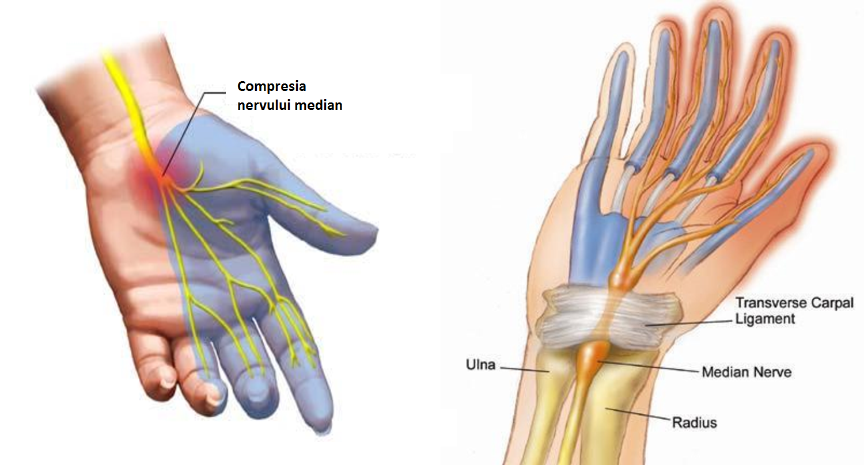 tratamentul sindromului de tunel carpian durere în articulația mâinii drepte după exercițiu