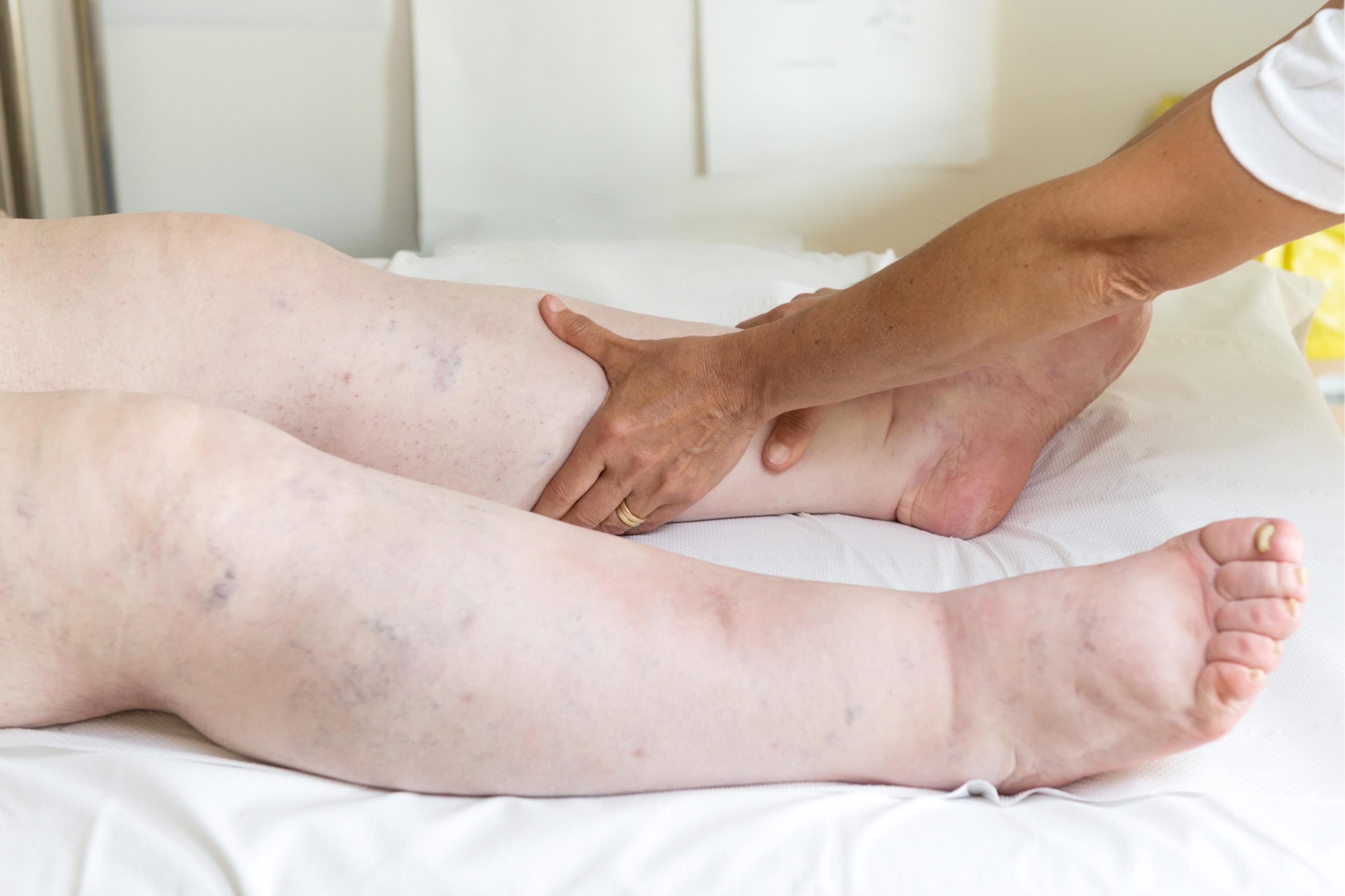 injecție pentru tratamentul artrozei durerea articulară va dispărea