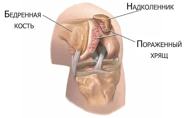 vindeca artroza genunchiului 2 grade ruptura articulației genunchiului