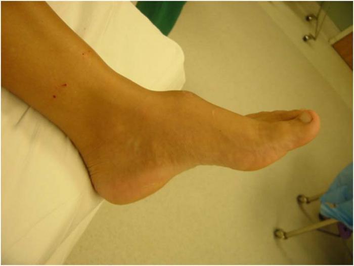tratament cu exostoza genunchiului