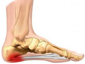 deteriorarea ligamentelor laterale ale tratamentului simptomelor articulației genunchiului