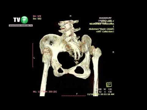 subluxarea bilaterală a tratamentului articulației șoldului tratament cu ultrasunete cu artroza piciorului