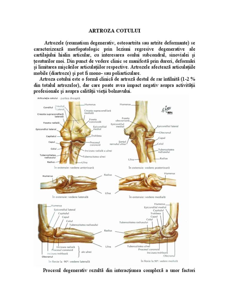 artrita tratamentul artrozei cotului gel articular ketoprofen