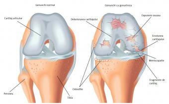 tratamentul medical al artrozei și artritei dureri musculare și articulare la vârstnici